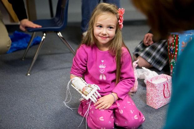 Команда школьников роботехников построила руку для четырехлетней девочки