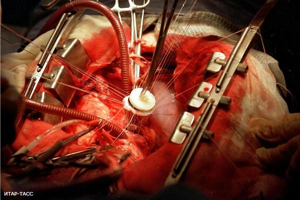 Роботы делают операции на сердце