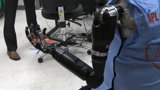 double-amputee-mind-controlled-prosthetics-1