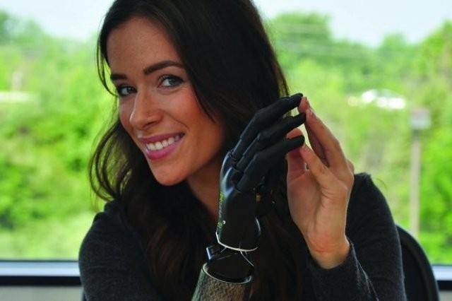 Touch Bionics представляет умный протез i-limb quantum на ISPO-2015