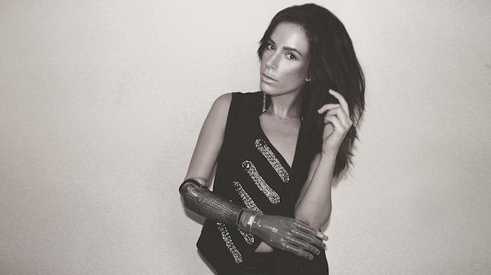 Девушка с бионической рукой